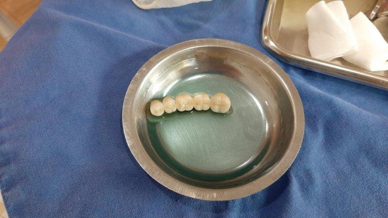 Zahnersatz Zahnbrücke beim ZahnarztChiang Rai